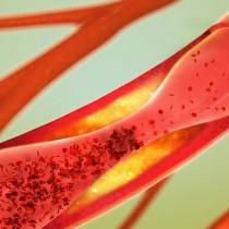 Los cigarrillos debilitan un gen que protege las arterias